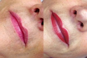 © Team Oblasser: Permanent Make-up / Lippen