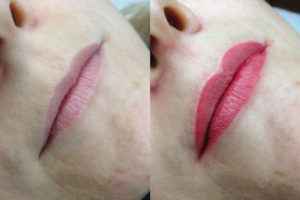 © Team-Oblasser: Permanent Make-up / Lippen